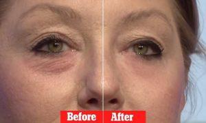 las mejores cremas para las arrugas alrededor de los ojos